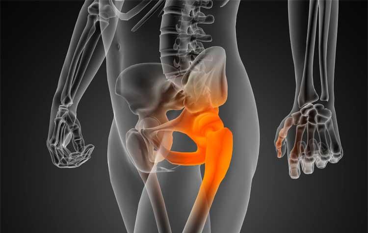 Cirugía ortopédica de cadera | Dr. Juan Manuel Moreno